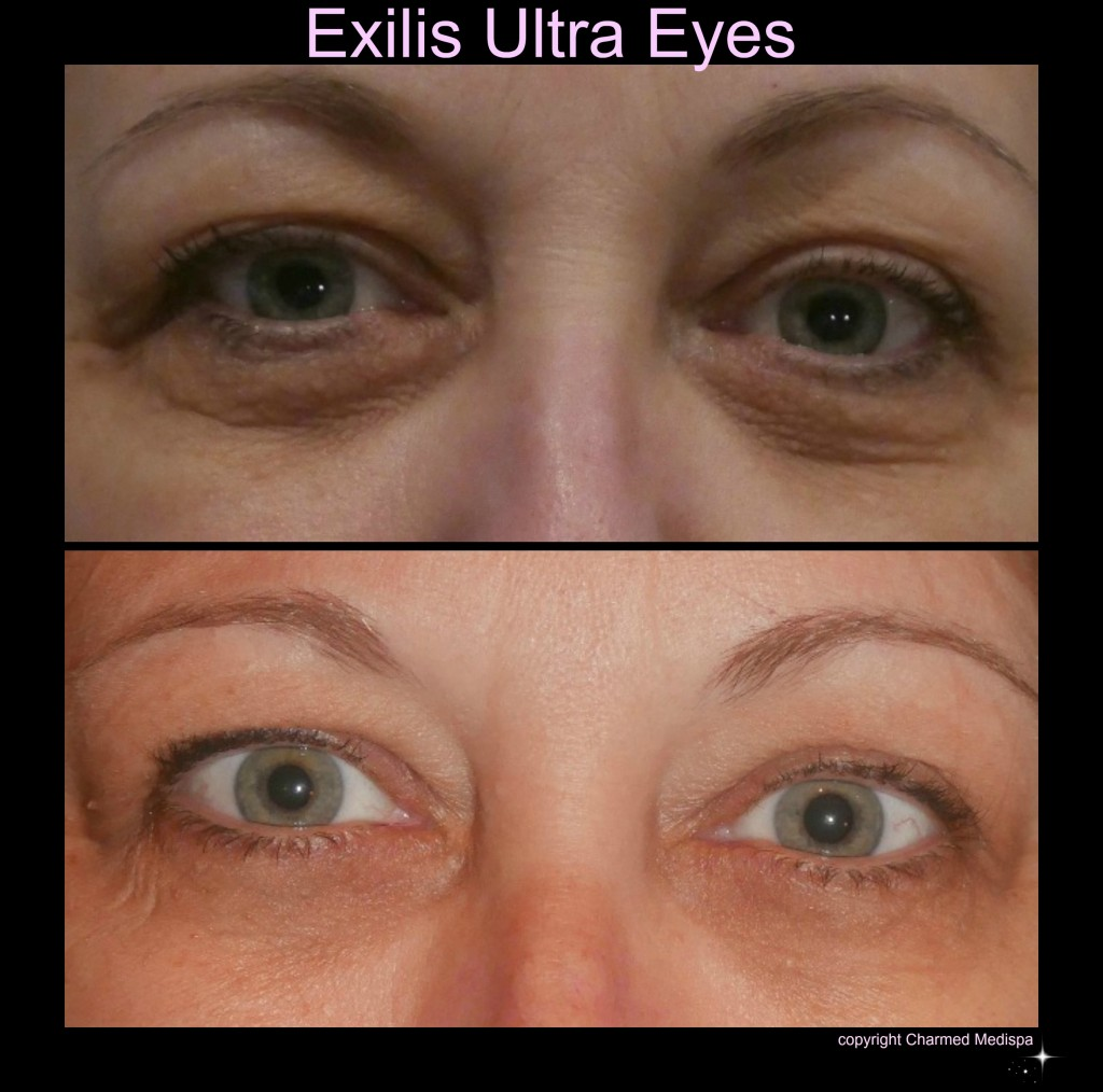 Before After Exilis Eyes