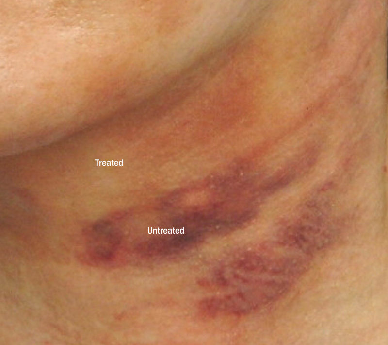 Ocumend results for bruising surgery treatments