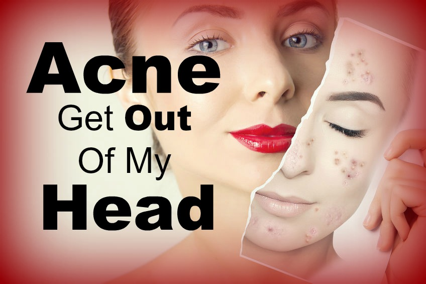 acne scarring delaware