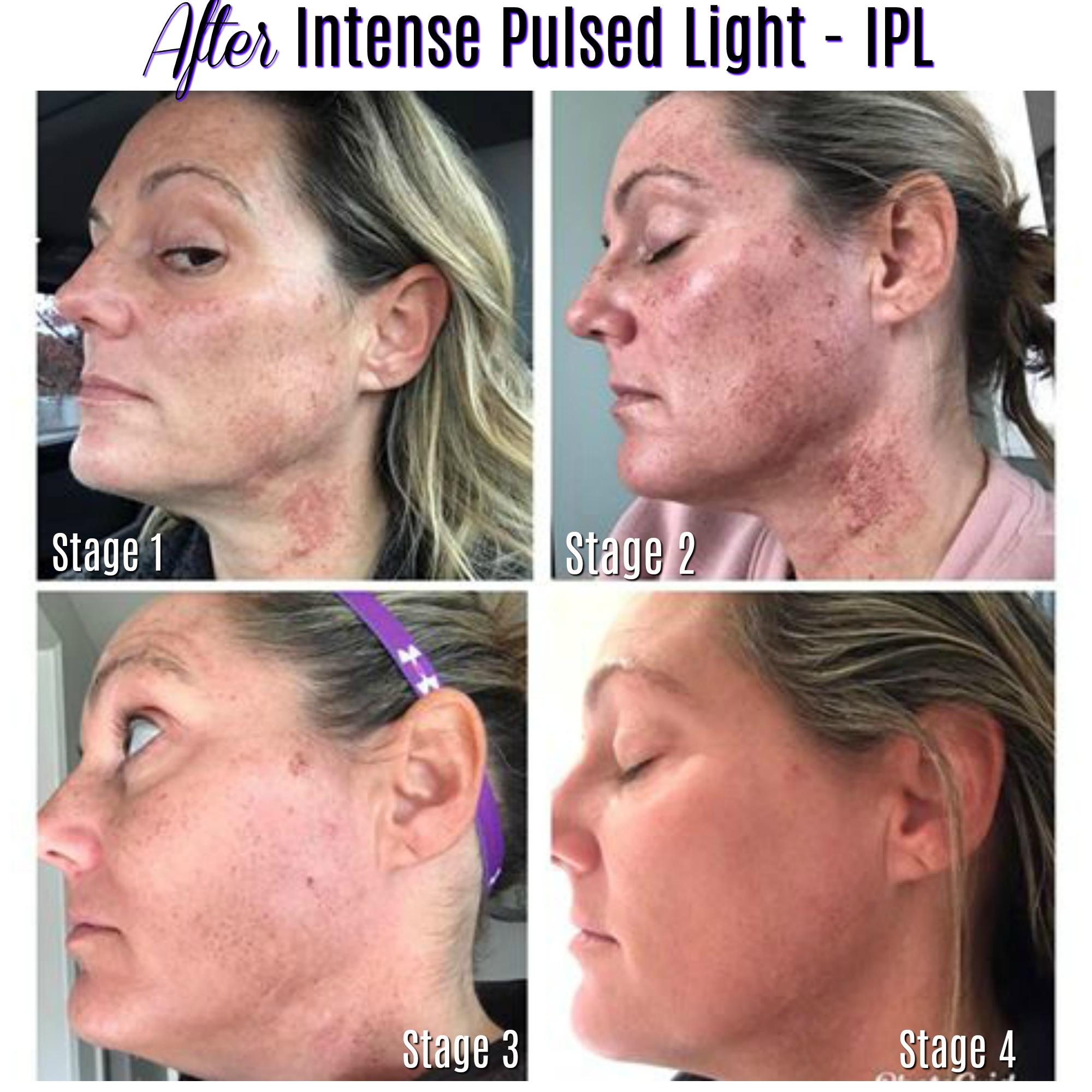 IPL laser med spa delaware