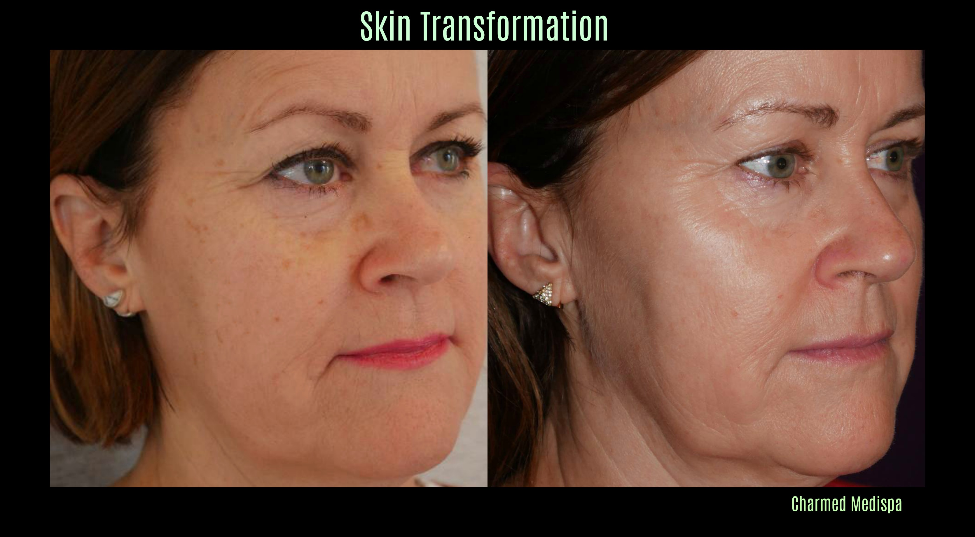 ad before after skin 2