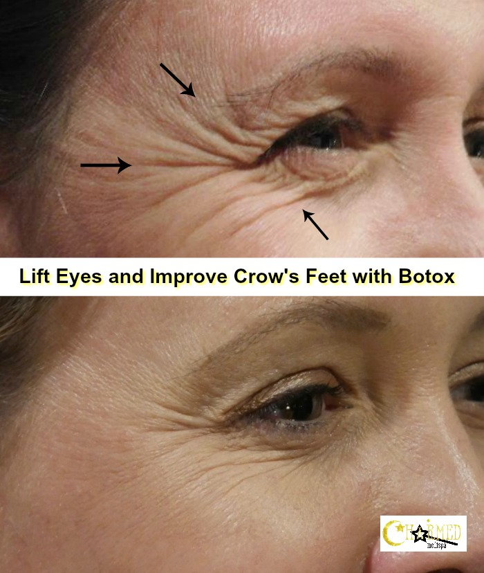 ad botox crow's feet