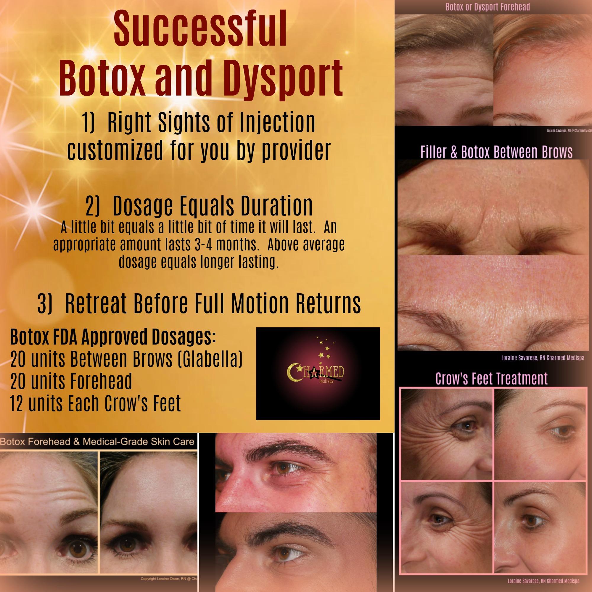Botox Dysport Delaware Results
