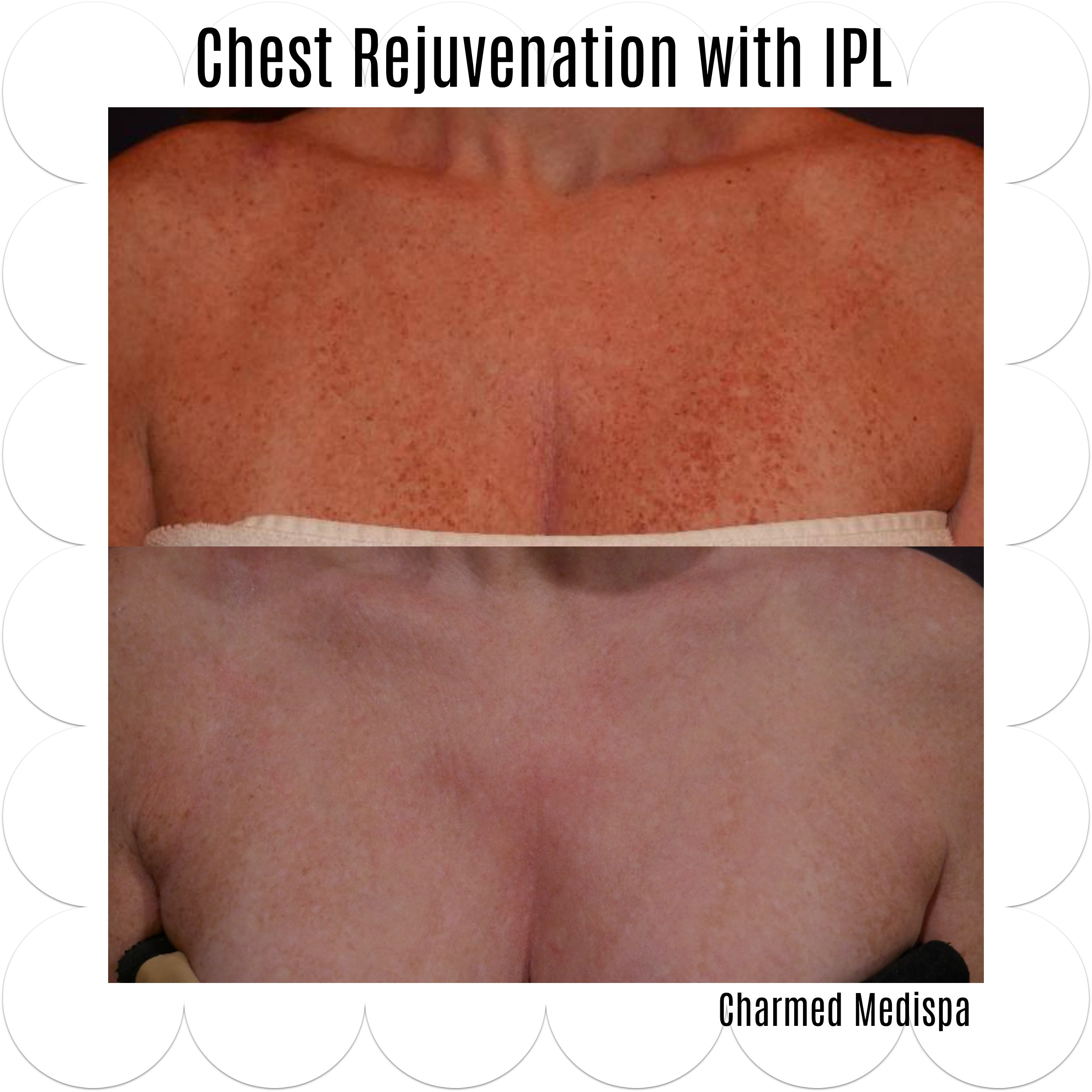 chest decolletage treatment delaware rejuvenation