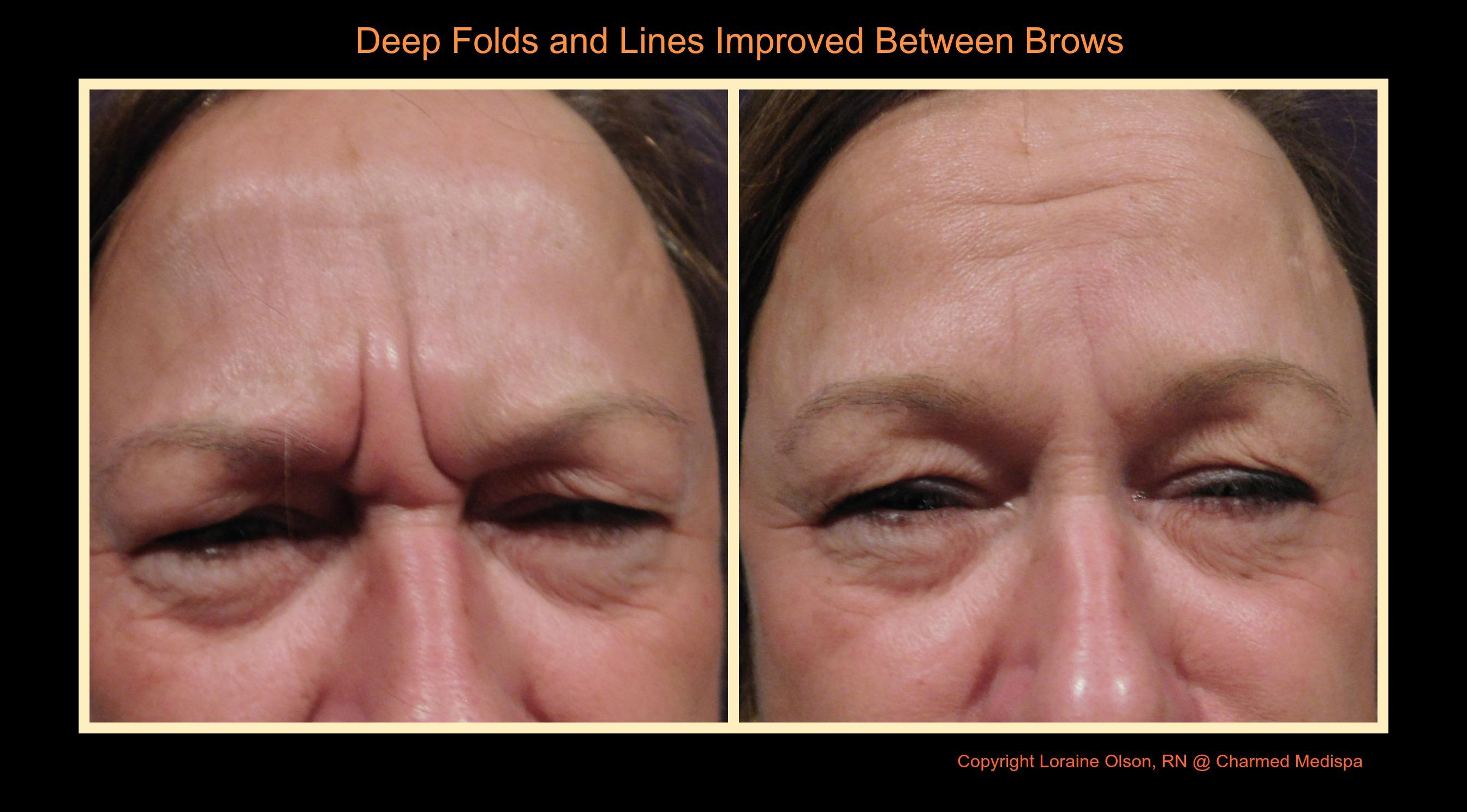 ad deep fold wrinkle