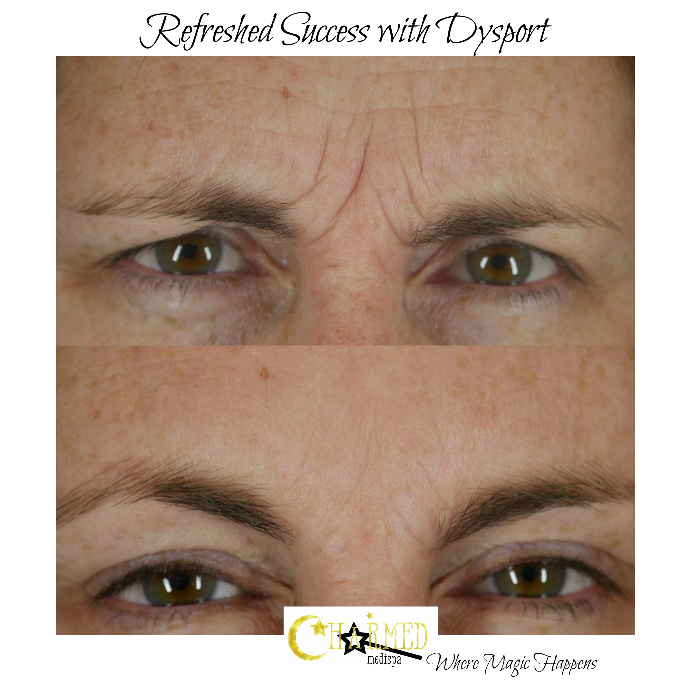 dysport botox brows forehead delaware