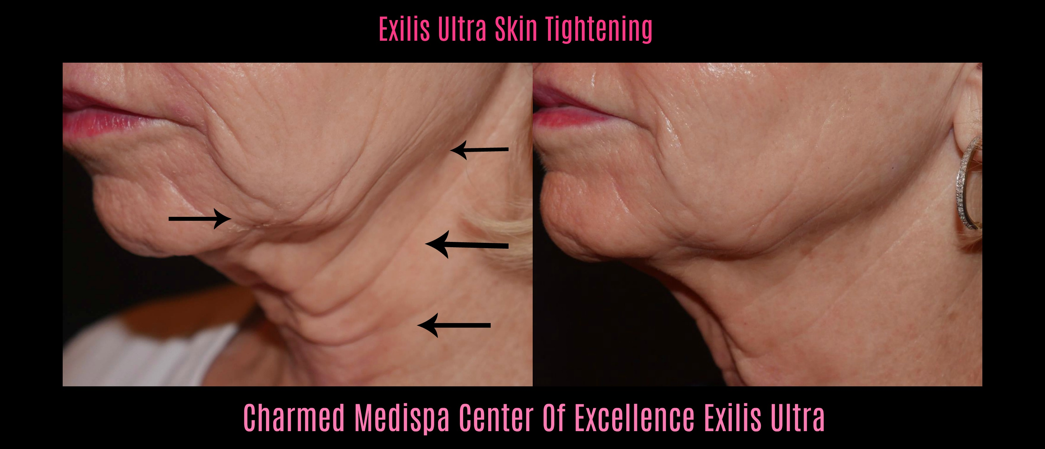 exilis ultra results