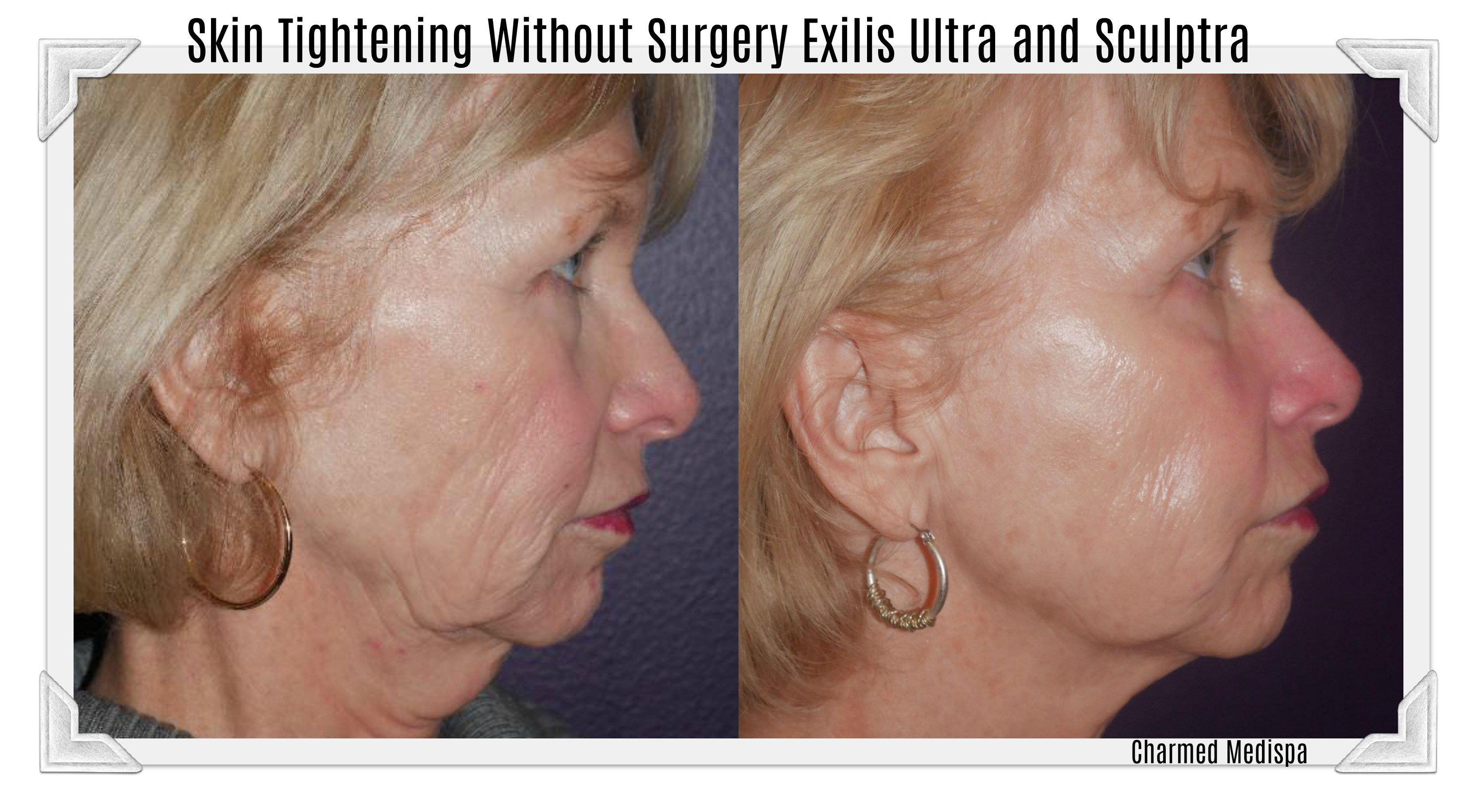 sculptra exilis ultra face neck