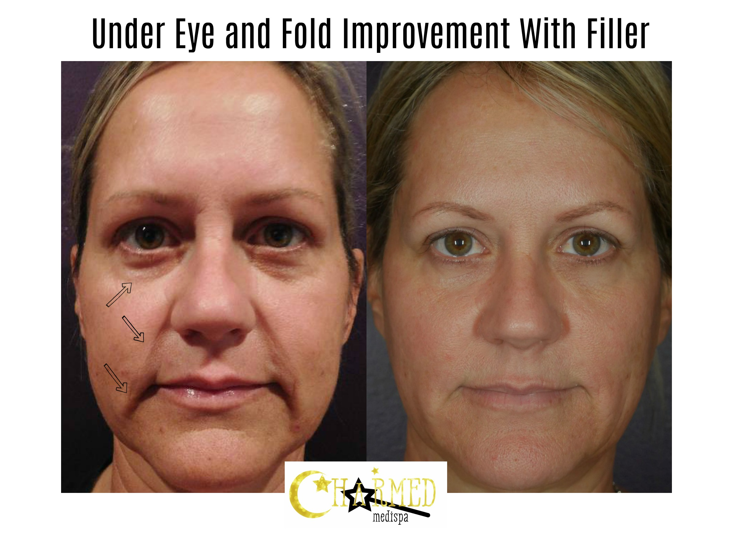 filler face under eye folds mouth delaware