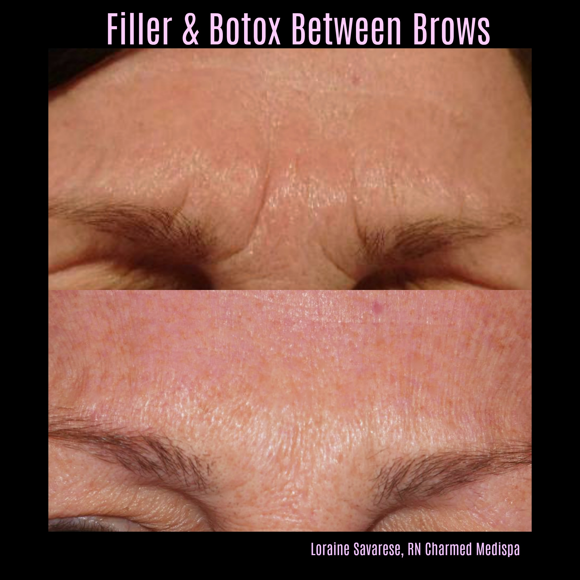Filler Botox Between Brows