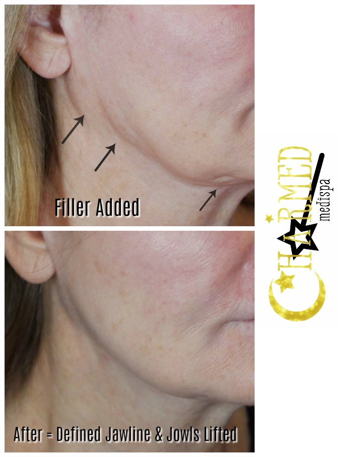 filler jawline rejuvenation jowls