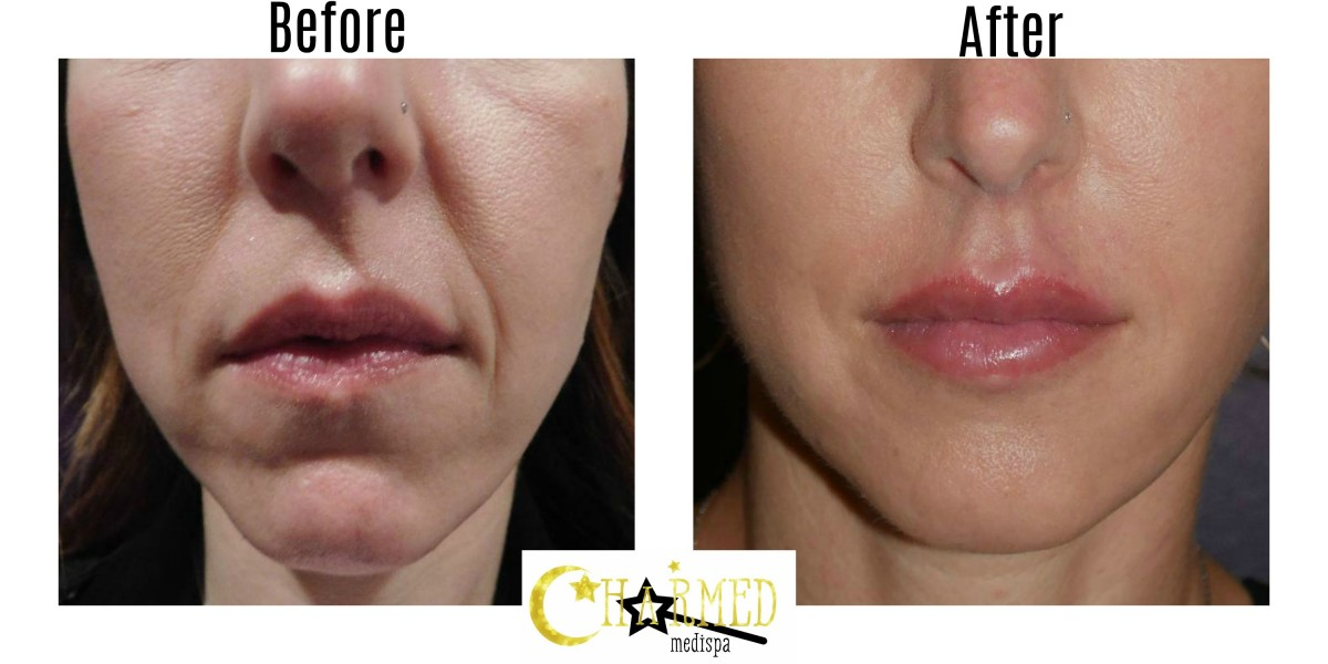 Here is a great example of the natural looking results with filler with our expert injector.