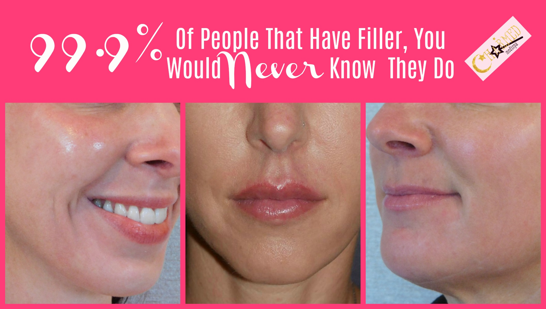 fillers and botox delaware