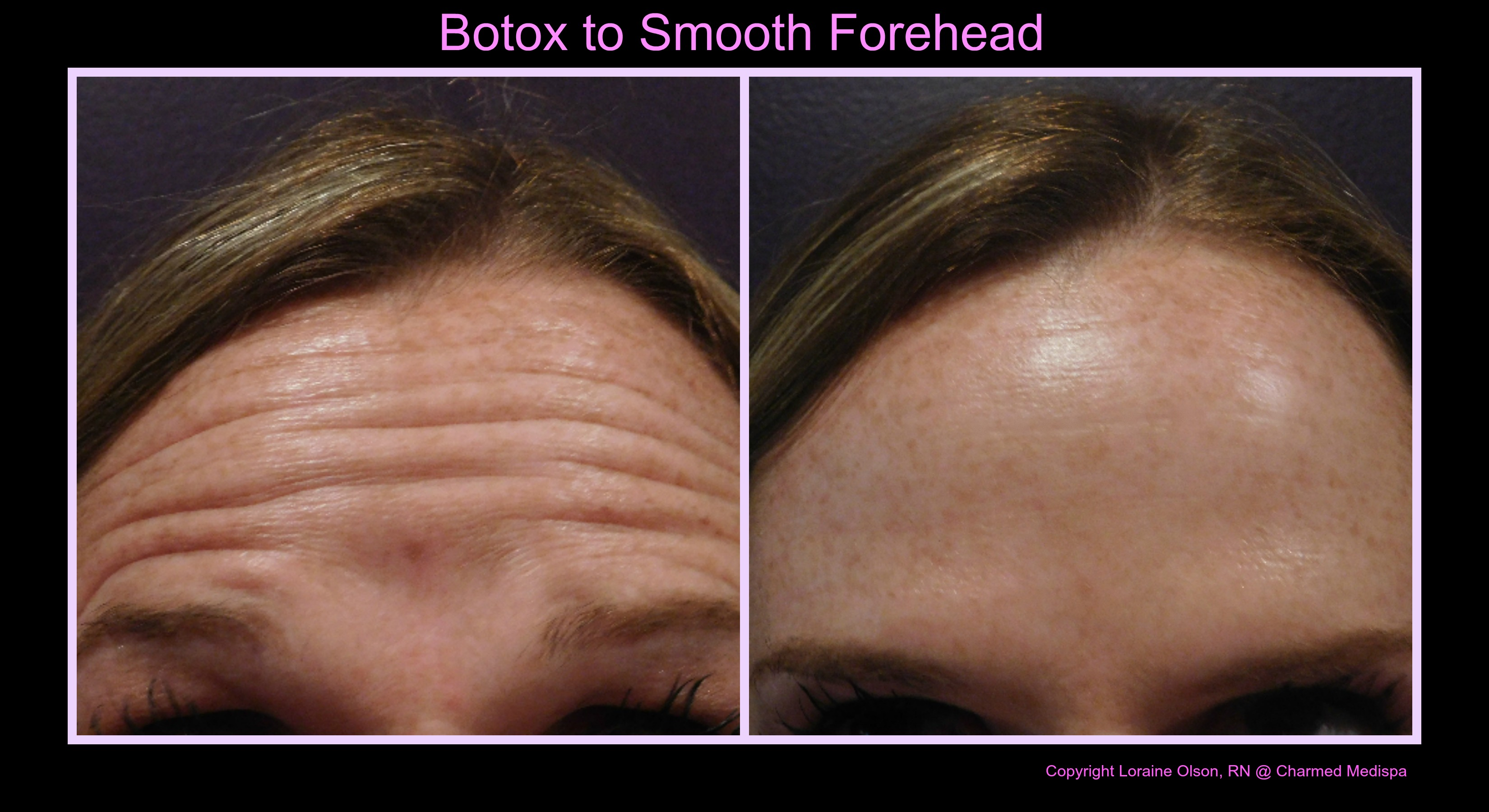 ad first time botox