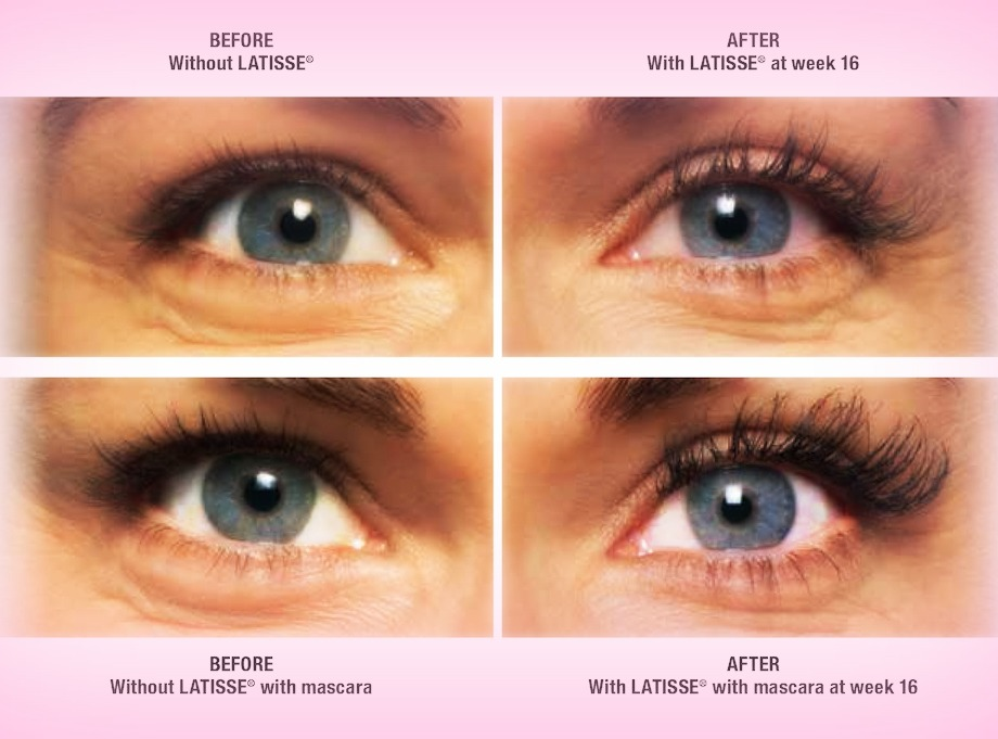 Our Personal Experience With Latisse Vs Lash Extensions Charmed