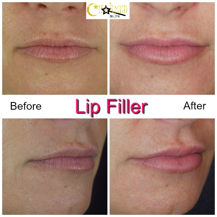 lip filler delaware med spa