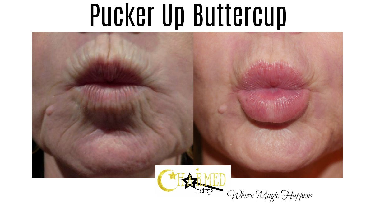lip line treatment filler results