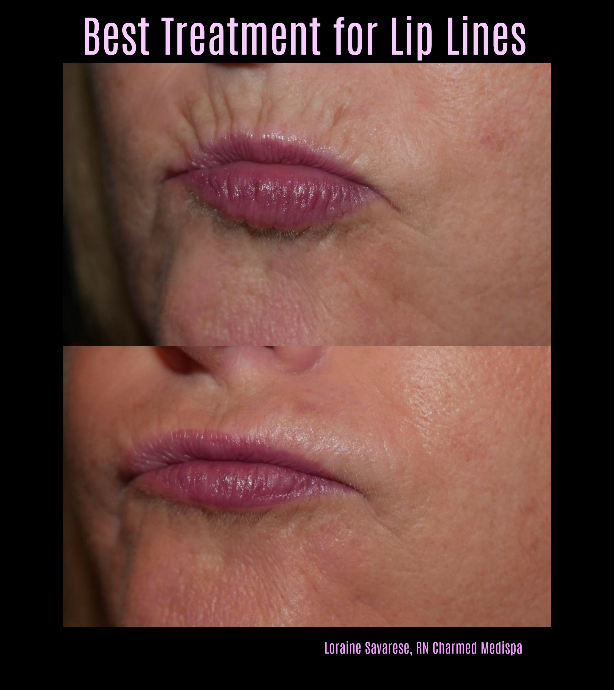 lip line filler treatment