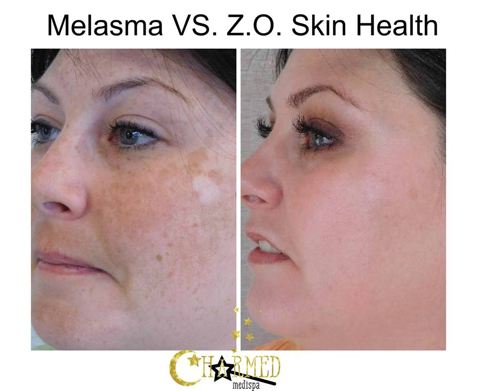 Melasma and severe hyperpigmentation treated with our skin care.