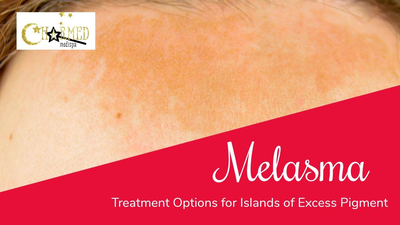 melasma skin delaware