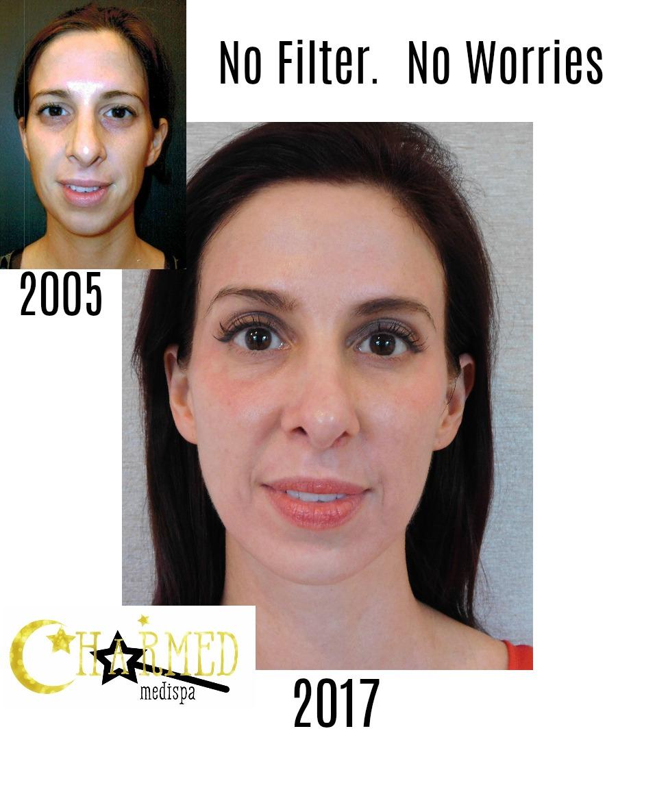 filler botox skin care delaware