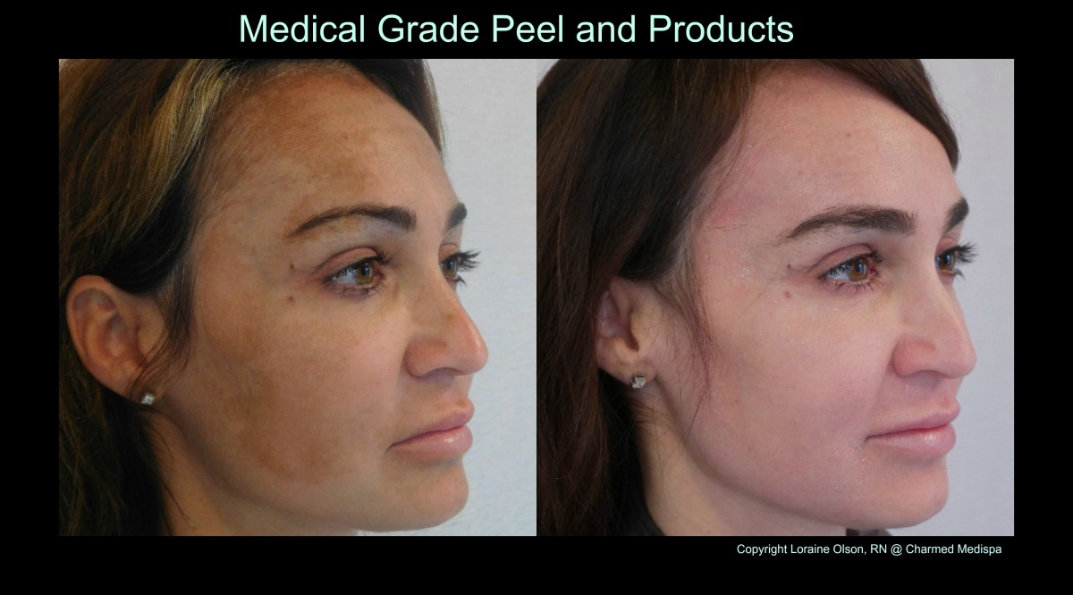 chemical peel melasma