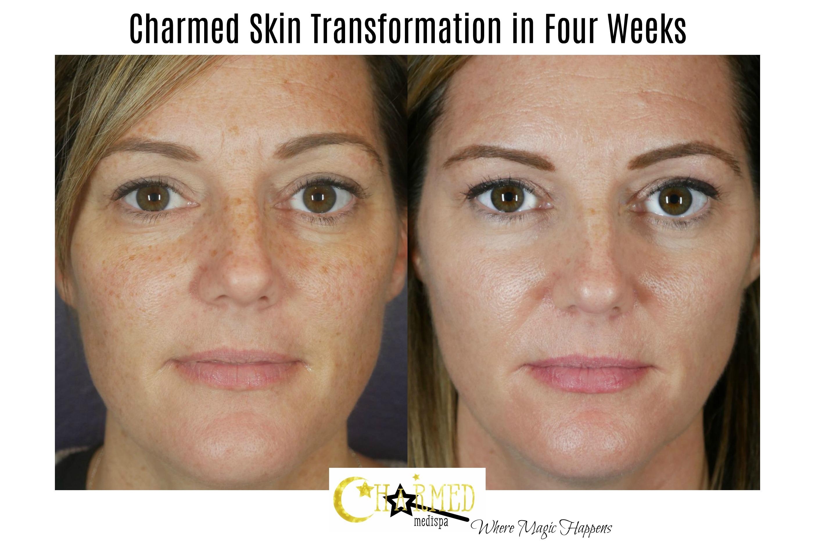 skin care delaware spa