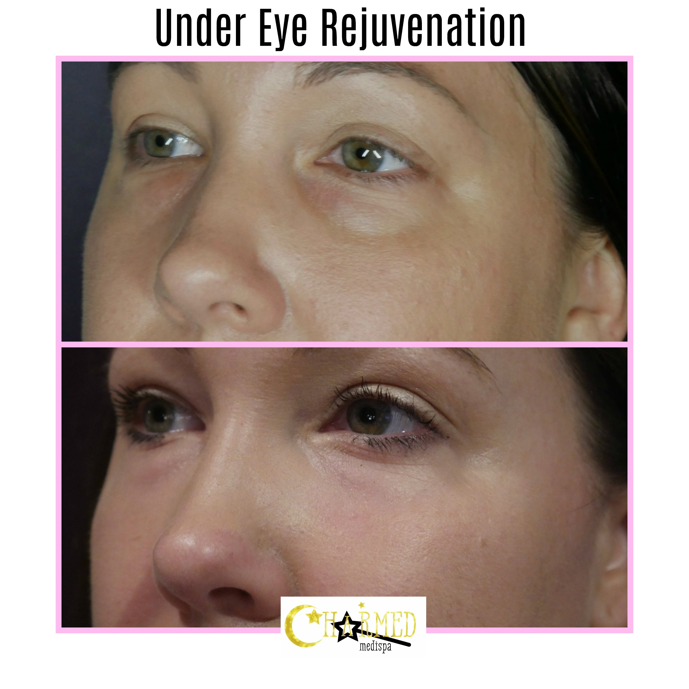 under eye filler delaware med spa