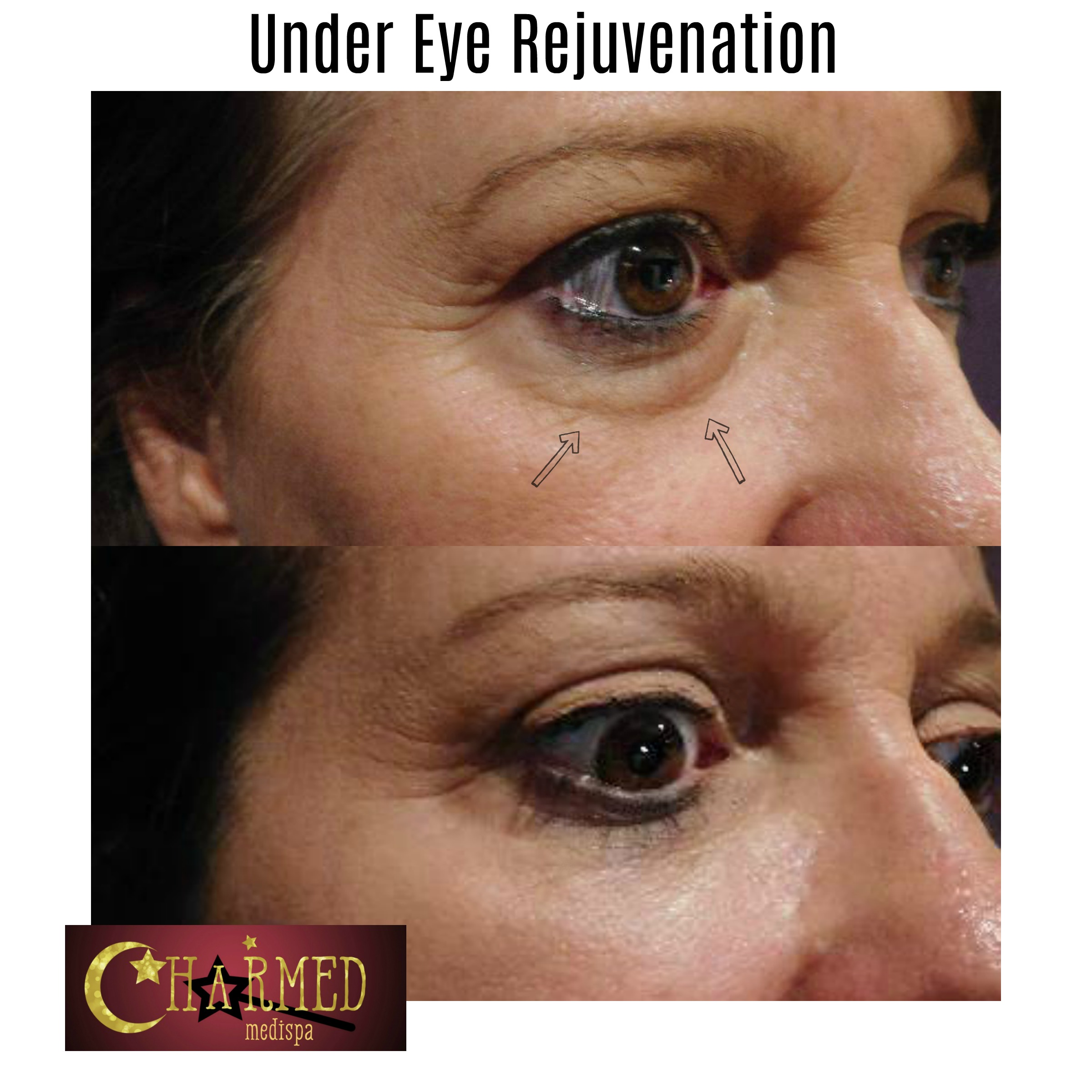 Under eye rejuvenation using filler has a dramatic result.