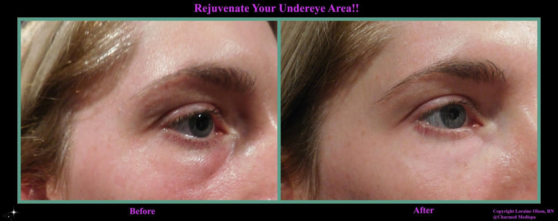 under eye 2