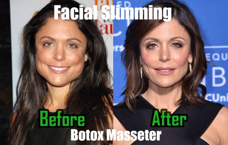 facial slimming review botox cea mai bună metodă de a pierde grăsimea brațului