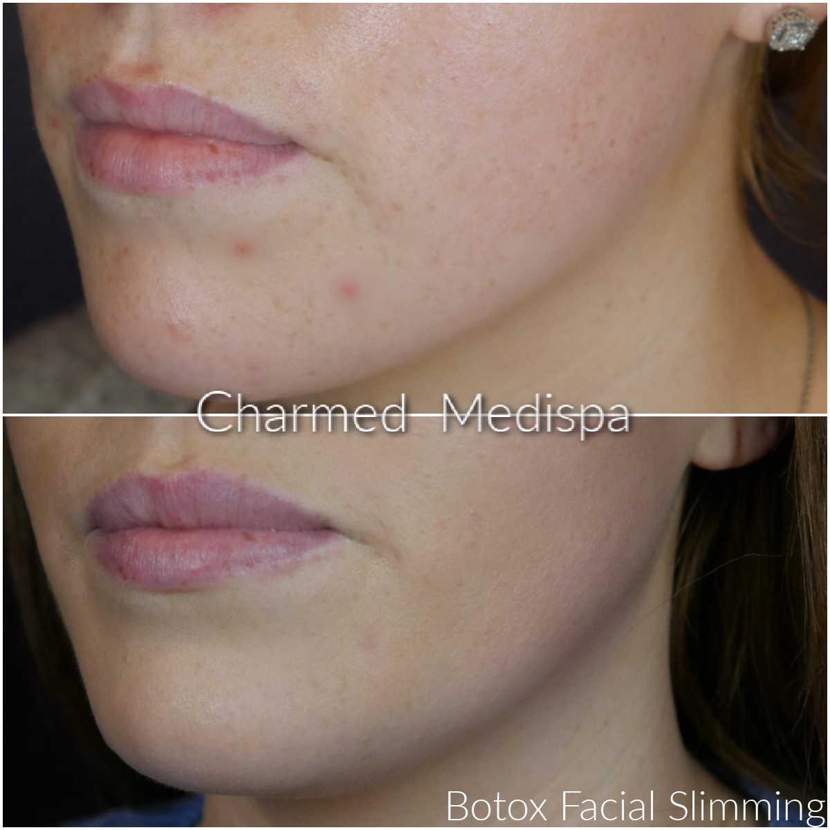 facial slimming review botox