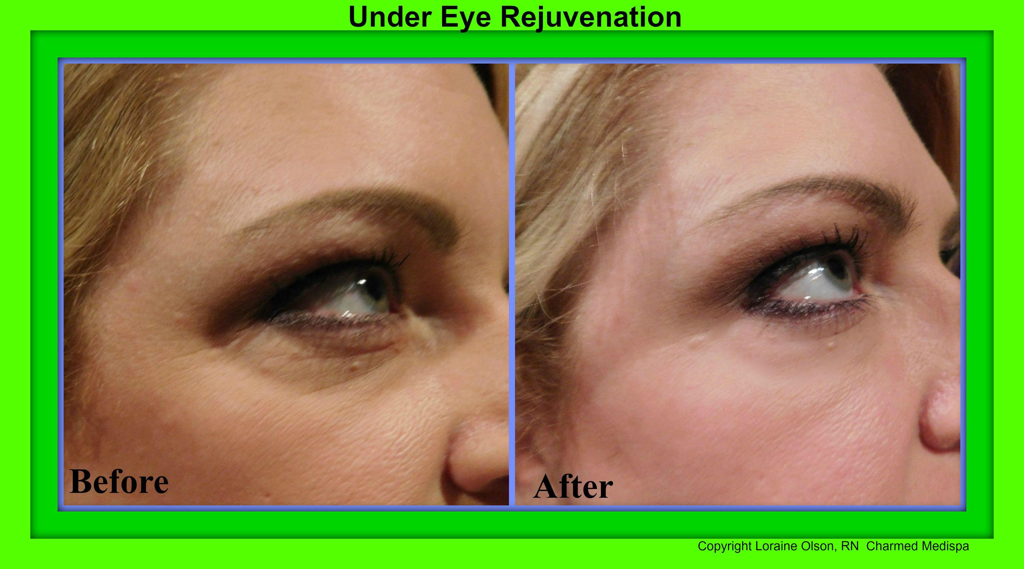 under eye rejuvenation surgery without nov