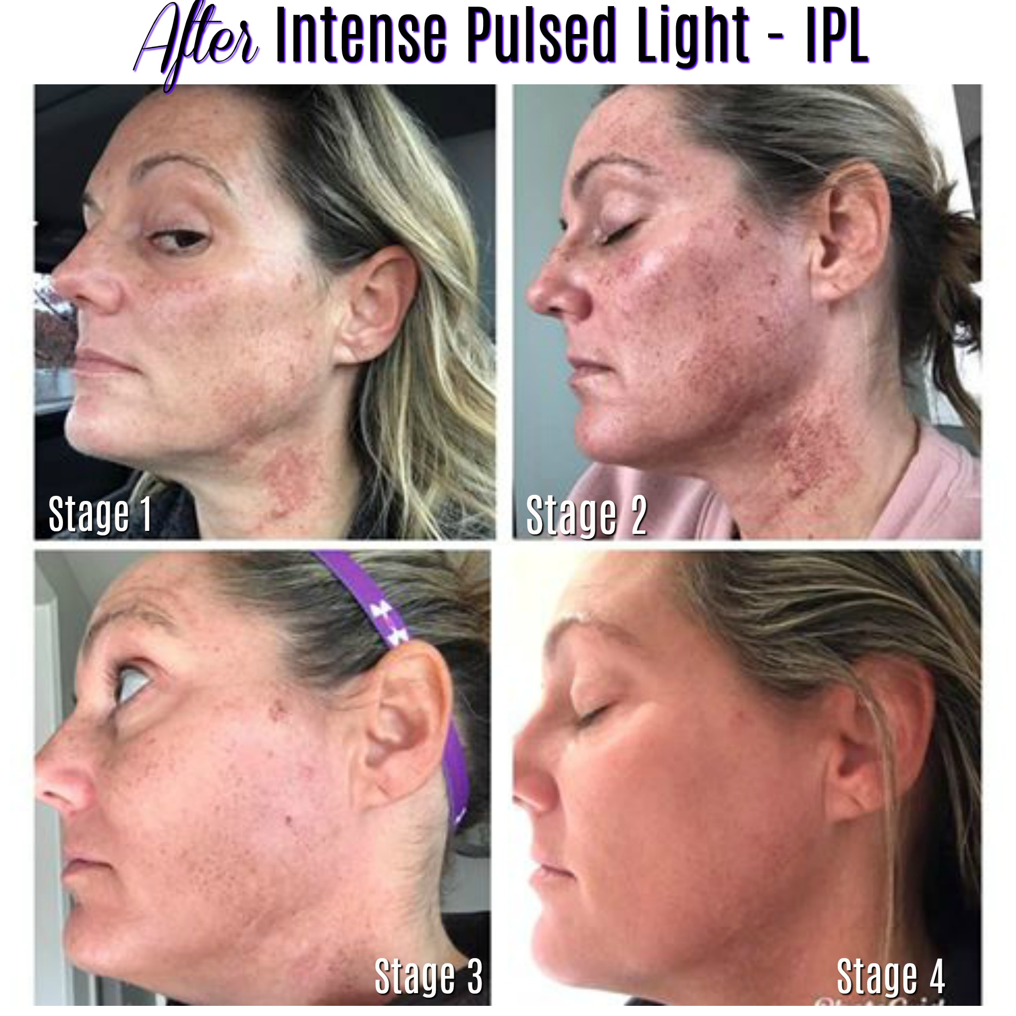 Skin Changes After Intense Pulsed Light Ipl Charmed