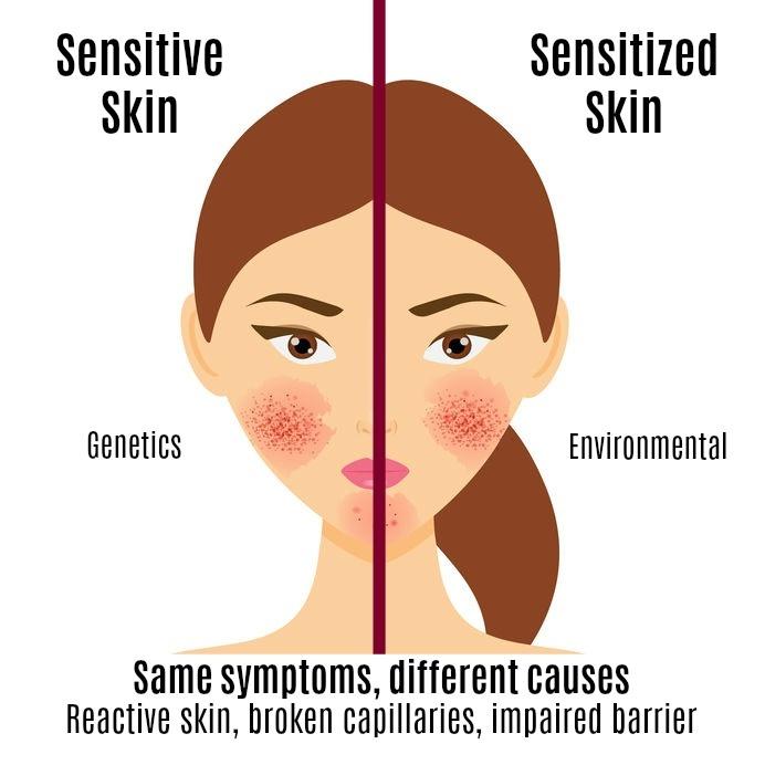 Tips Memilih Kandungan Skincare Untuk Kulit Sensitif