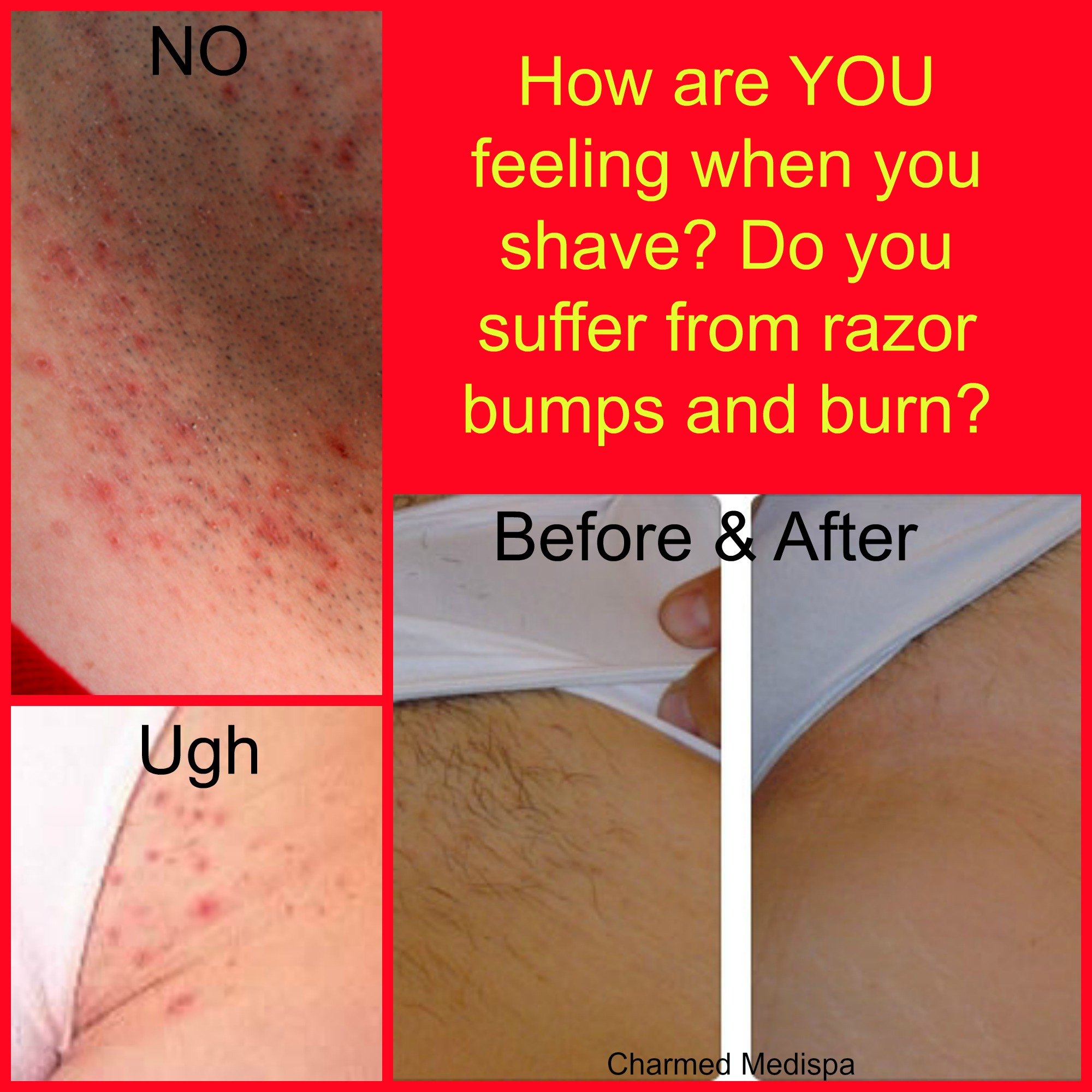 Bikini hair laser photo removal
