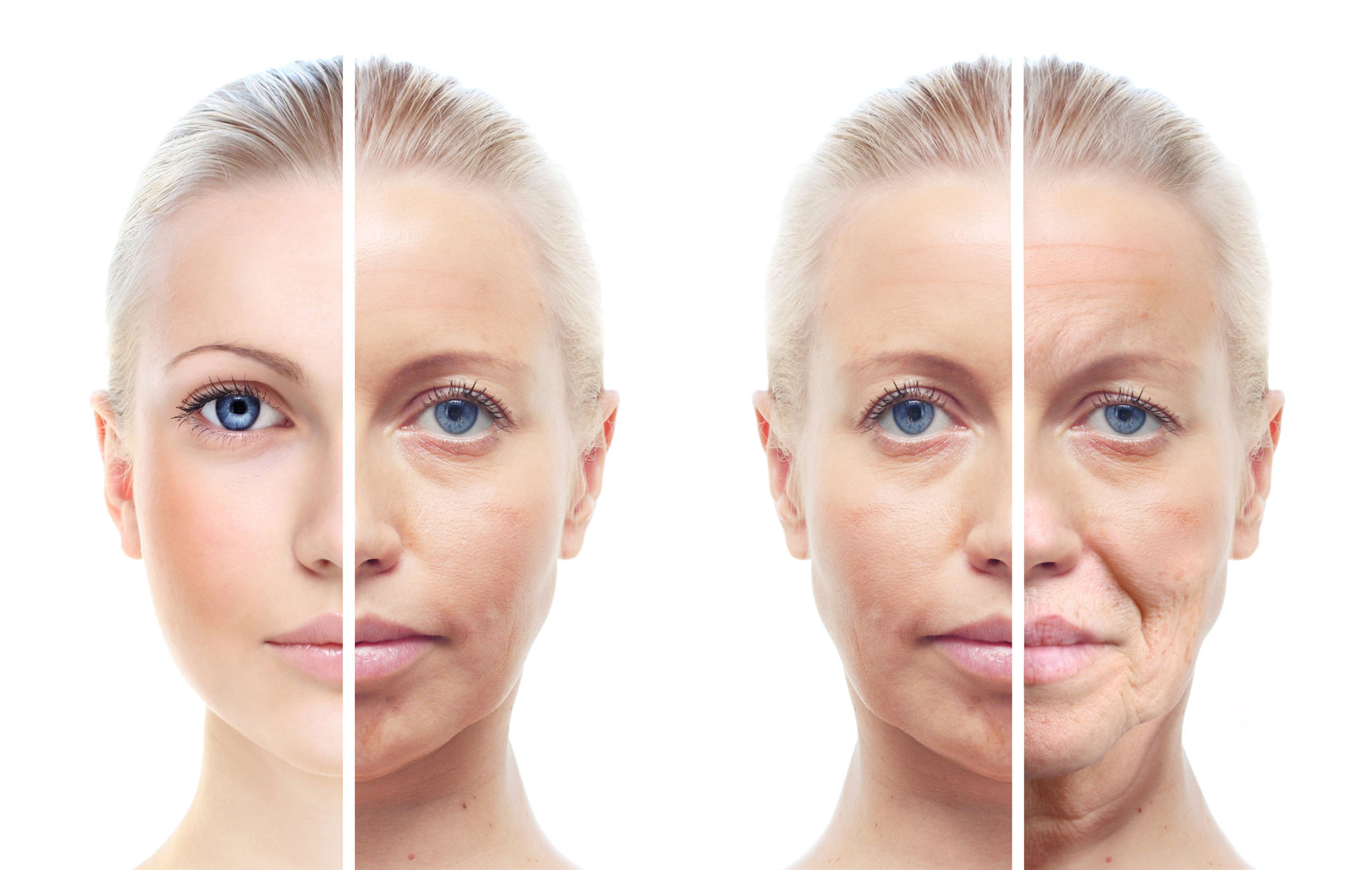 Botox | Charmed Medispa