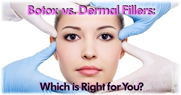 Dermal fillers charmed medispa botox vs dermal fillers solutioingenieria Gallery